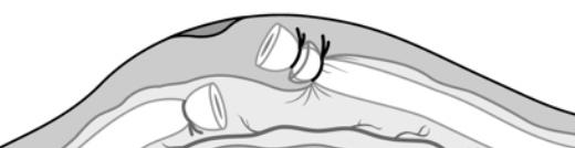 Interposición de tejido entre ambos extremos del conducto deferente
